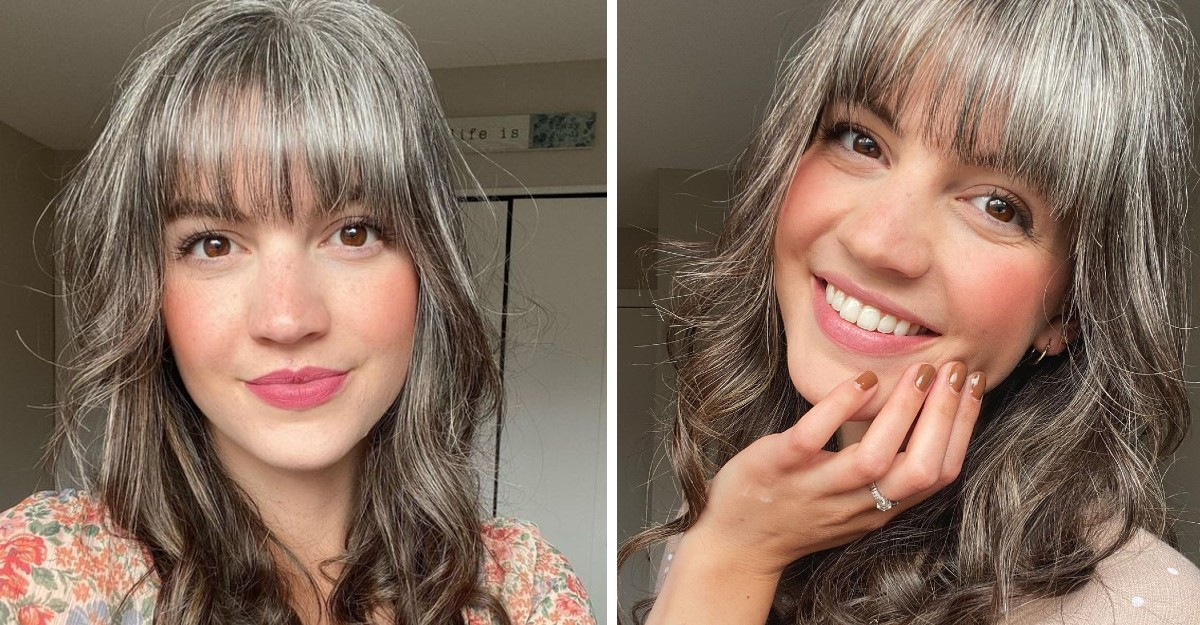 26-year-old decides to give up her grey hairs after struggling with it. She got her first one at 12 years old